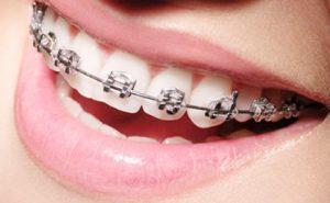 Mini-implante Dentário