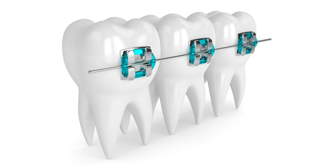 conheca-os-aparelhos-ortodonticos