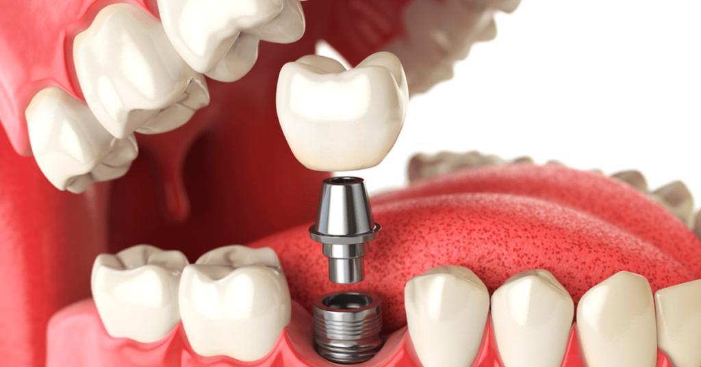 implantes-dentarios-o-que-voce-precisa-saber